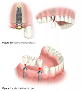 dental implant treatment process