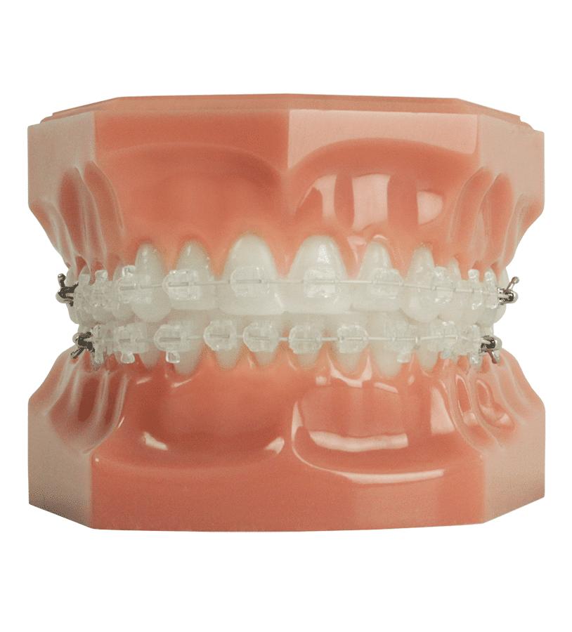 Shine Dental Care Nottinghamshire