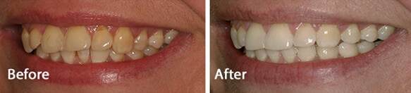 Teeth straightening results