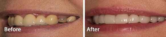 dental implants treatment results