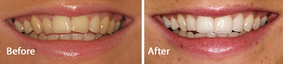 Invisalign treatment results