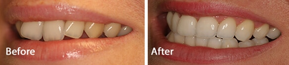 teeth whitening results