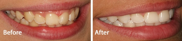 bright teeth whitening