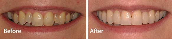 Shine Dental Care Nottinghamshire