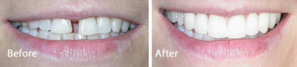 amazing veneers results