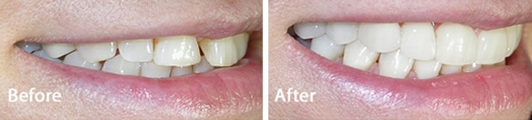 veneers treatment results