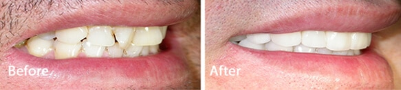 Revitalise Your Smile with Dental Veneers for Sheffield