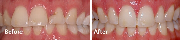 White fillings for patients