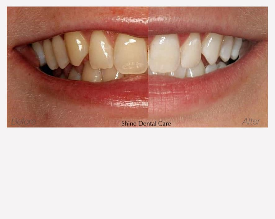Teeth Whitening | Shine Dental Care | Teeth Whitening in